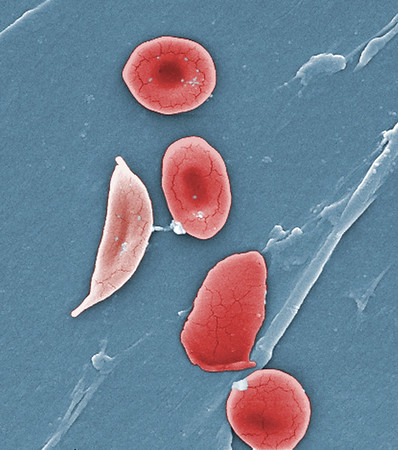 "2009Sickle Cell Foundation of Georgia: Jackie George, Beverly SinclairThis digitally-colorized scanning electron micrograph (SEM) revealed some of the comparative ultrastructural morphology between normal red blood cells (RBCs), and a sickle cell RBC (left) found in a blood specimen of an 18 year old female patient with sickle cell anemia, (HbSS); People who have this form of sickle cell disease inherit two sickle cell genes (""S""), one from each parent. This is commonly called ""sickle cell anemia"", and is usually the most severe form of the disease.Sickle cell disease is a group of inherited red blood cell disorders. Healthy red blood cells are round, and they move through small blood vessels to carry oxygen to all parts of the body. In sickle cell disease, the red blood cells become hard and sticky and look like a C-shaped farm tool called a ?sickle?. The sickle cells die early, which causes a constant shortage of red blood cells. Also, when they travel through small blood vessels, they get stuck and clog the blood flow. This can cause pain and other serious problems."